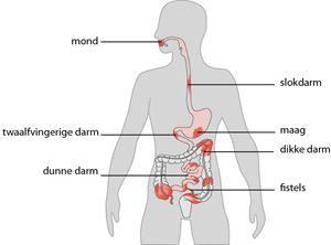 De Beste Zorg Bij De Ziekte Van Crohn Rijnstate